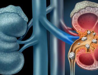 Common Symptoms for Kidney Stones