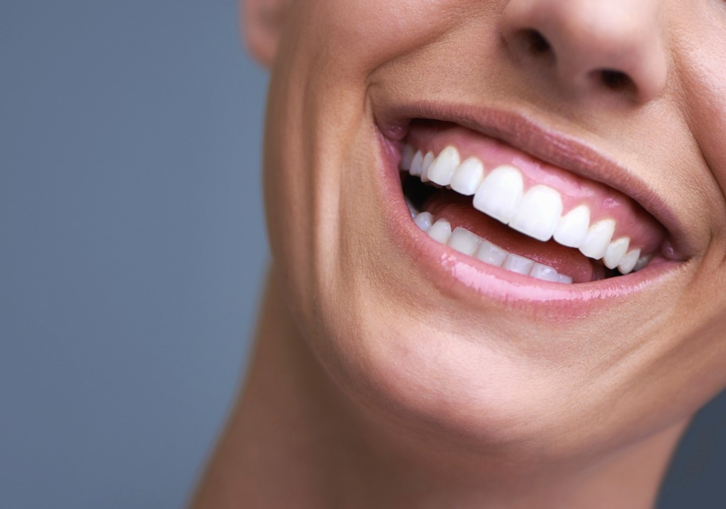 Benefits of a smile transformation