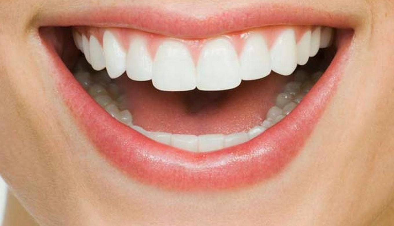 smile make-over dentist in Melbourne